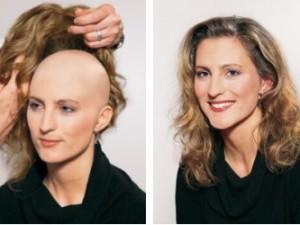 Paruka z vlasů Aida před a po